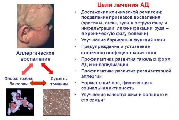 Схема лечения атопического дерматита