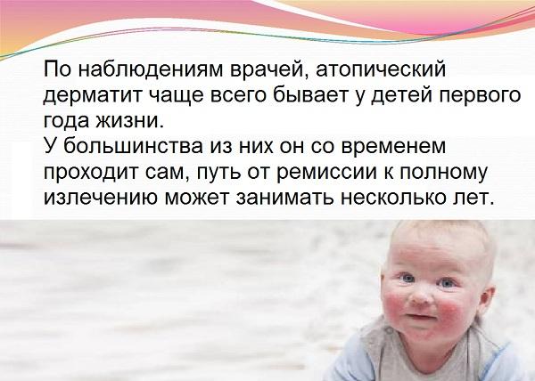 Последствия атопического дерматита у детей