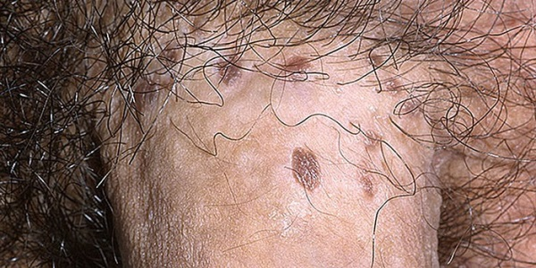 Белые наросты на головке члена