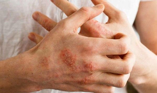 Дисгидроз кистей рук: лечение, фото, причины