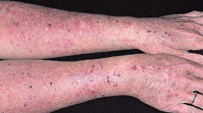 Хроническая экзема кистей рук, ног, лица: методы, лечения