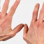 Идиопатическая крапивница (неаллергическая): что это такое, лечение и симптомы, причины аутоимунного заболевания, фото