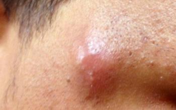 Чем помазать чирей на лице