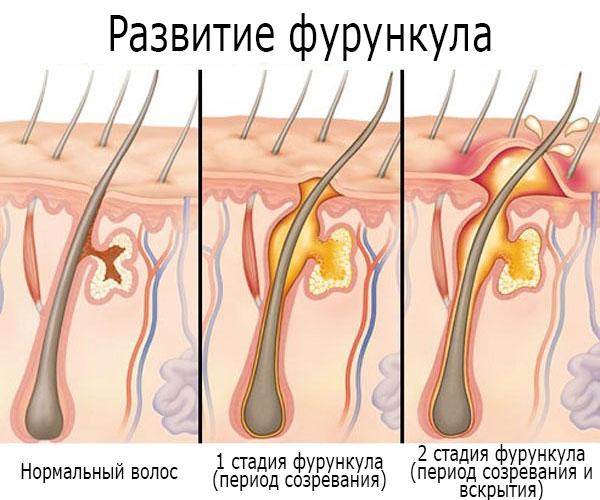 Фурункул у женщин: в паху, на лобковой части и других интимных местах