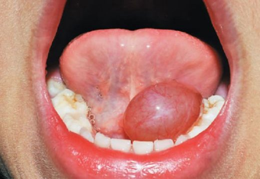 Фурункул внутри на губе