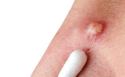 Фуркнкул на руке: на пальцах, запястье, что делать и как лечить