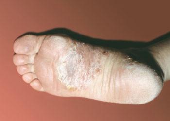 Псориаз на ногах: 100 фото как выглядит и почему развивается псориаз
