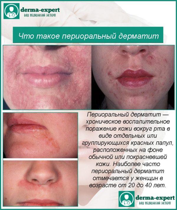 Пероральный дерматит — Аллергия