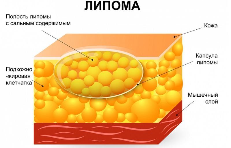 Удаление липомы лазером: противопоказания, последствия