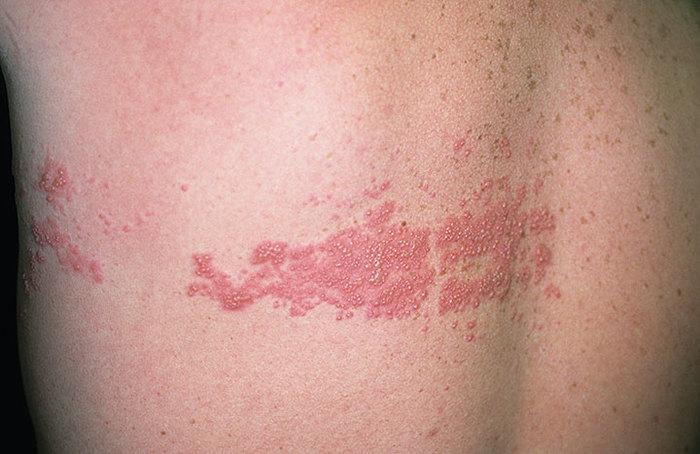 Как выглядит лишай на коже человека