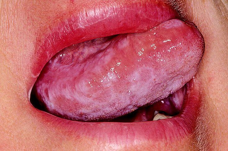Красный плоский лишай на половых органах
