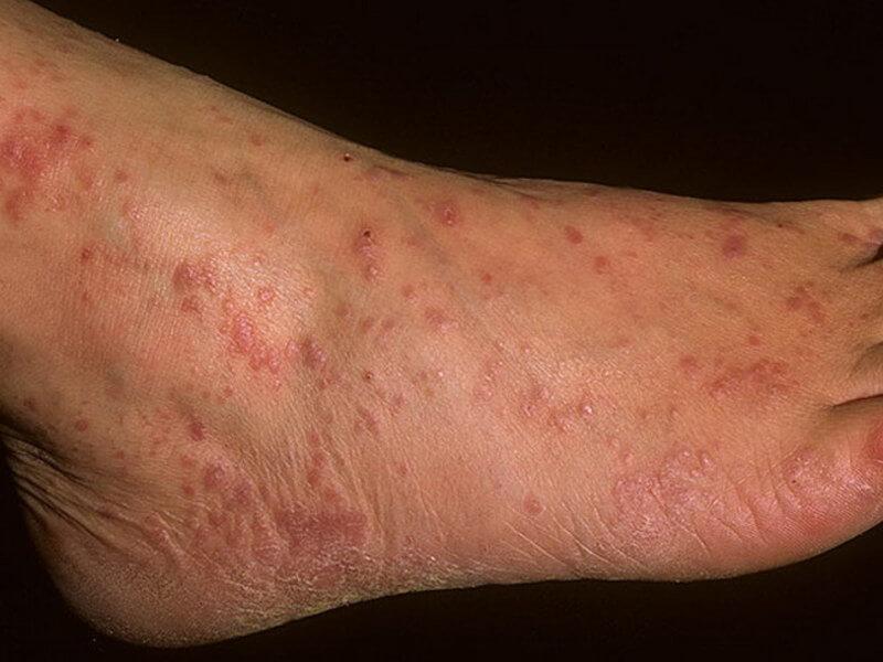 Красный плоский лишай у человека – как лечить? Симптомы и причины