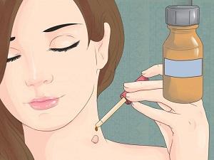 Папилломы на коже причины возникновения лечение