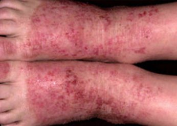 Микотическая экзема: грибковое поражение кожного покрова, механизм развития, клиническая картина, лечение заболевания, медикаментозная терапия, народные методики