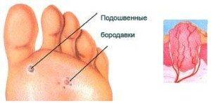 Бородавка на пальце ноги и руки, как выглядит и каковы причины