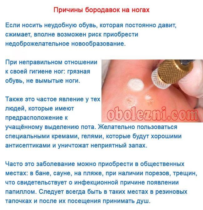 Лечение бородавок на стопе народными средствами