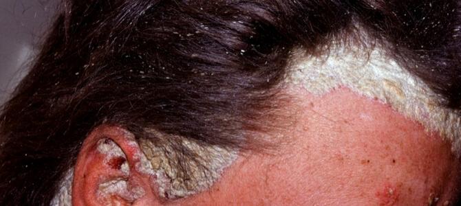 Себорейный псориаз волосистой части головы лечение