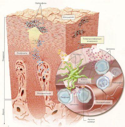 Псориаз волосистой части головы лечение народными средствами