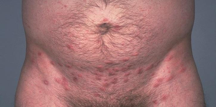 Псориаз на половом члене: фото на головке члена у мужчин, псориаз в паху и на лобке