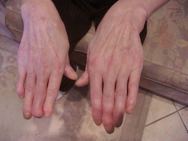 Псориатический артрит диагностика