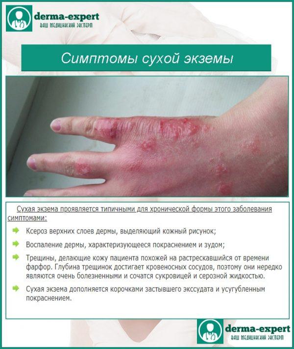 Как и чем лечить экзему на руках