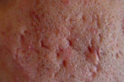 Фурункул на лице - симптомы: как лечить фурункулез народными средствами, лекарствами и физиотерапией, как избавиться от чирия хирургически