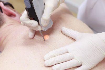 Нарыв на руке под кожей — Специалист по УЗИ
