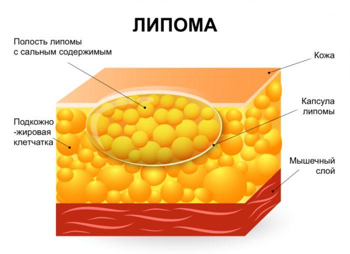 Липома – что это такое и как лечить?