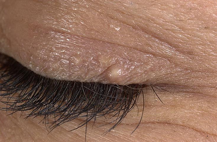 Жировик на теле, под кожей: симптомы, причины, лечение
