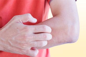 Аллергическая экзема у детей и взрослых: причины и лечение