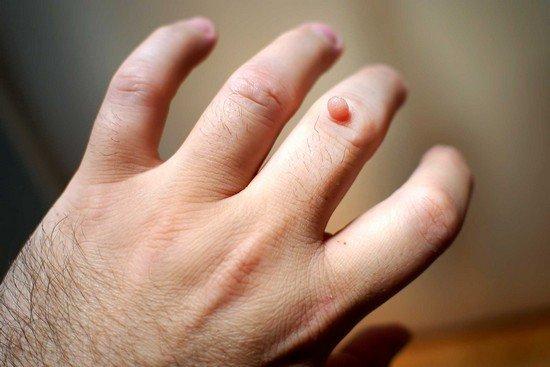 Как убрать бородавку на пальце руки