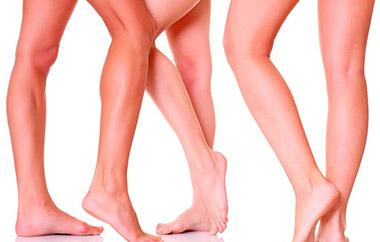 Лечение экземы на ногах: обзор эффективных методов