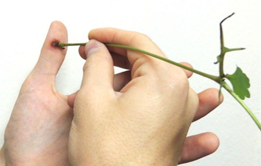 Препараты для лечения подошвенных бородавок на ступне