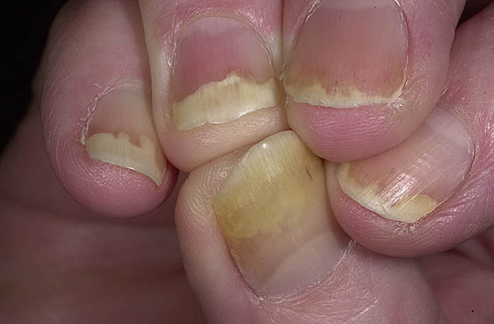 Псориаз ногтей: как лечить ногтевой псориаз на руках и ногах