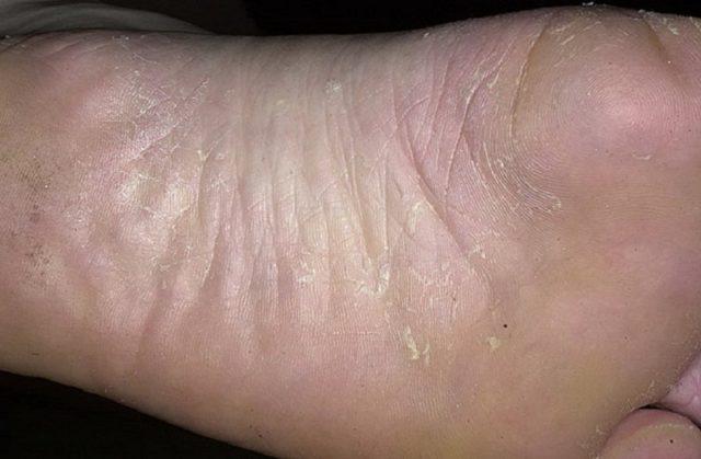 Йодинол от грибка ногтей: показания к использованию и правила применения, лечебные свойства и эффективность, противопоказания и побочные явления